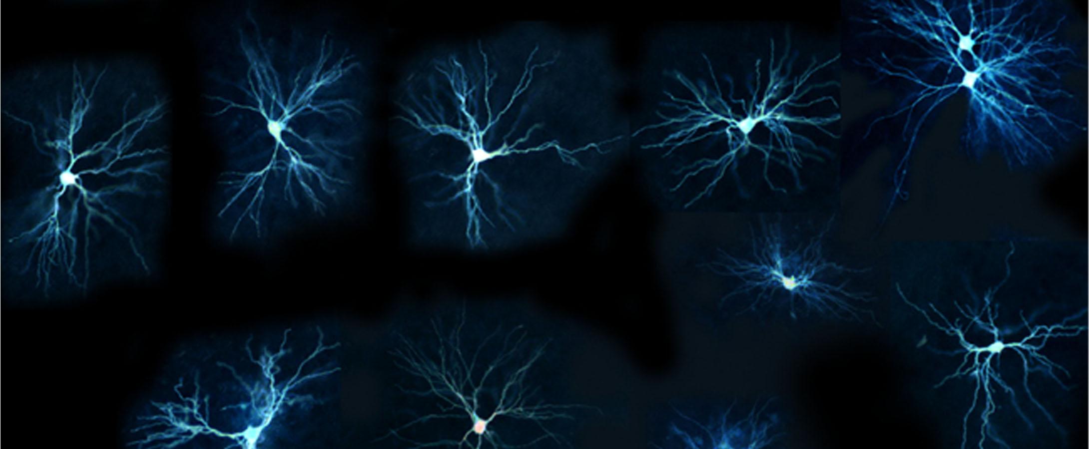 scientific image courtesy of SfN journals